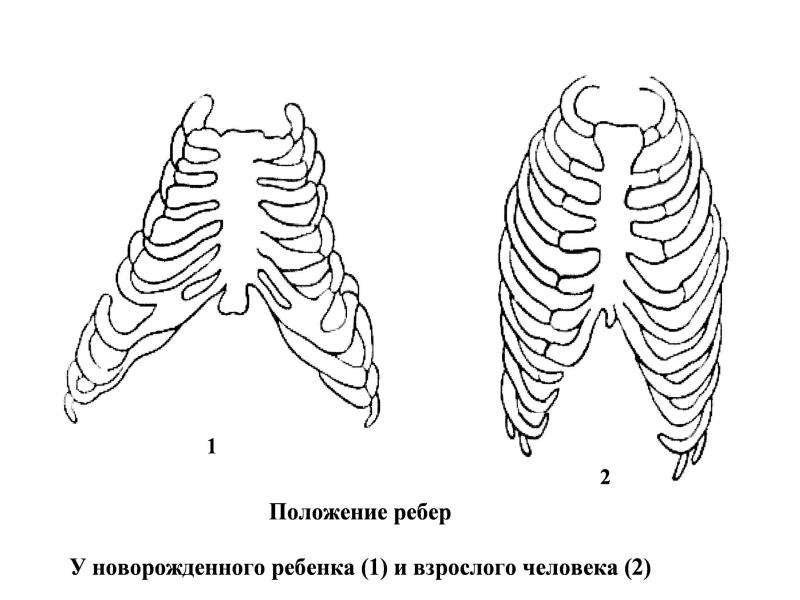 Патофизиология внешнего дыхания, слайд 39