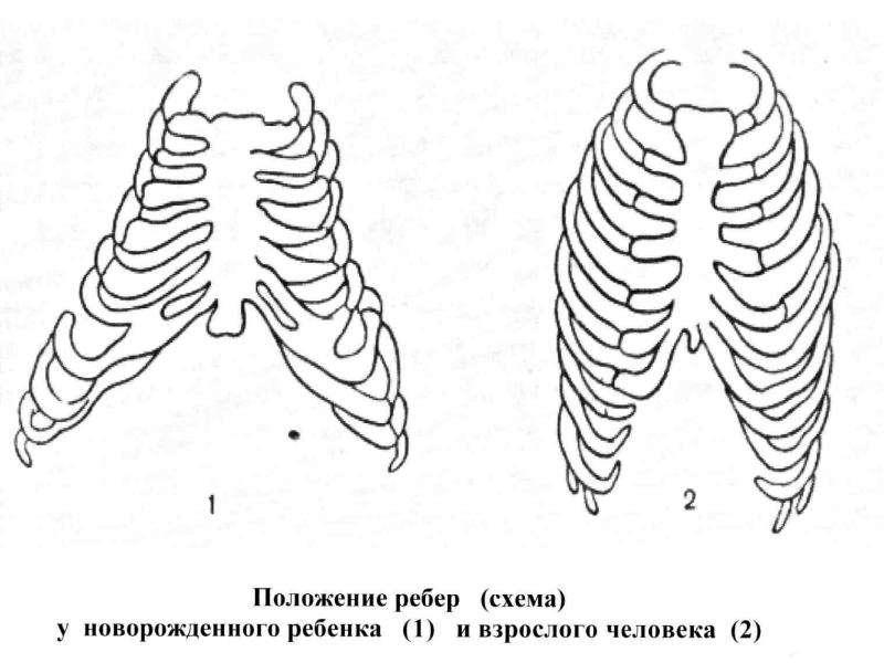 Патофизиология внешнего дыхания, слайд 40