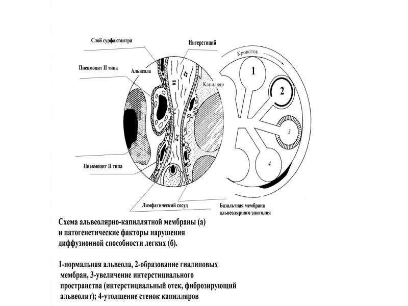 Патофизиология внешнего дыхания, слайд 45