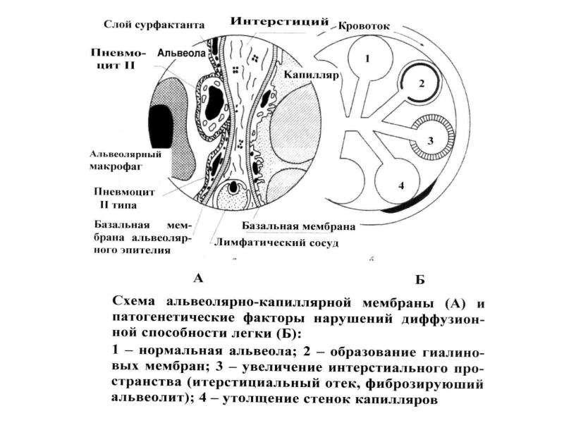 Патофизиология внешнего дыхания, слайд 46