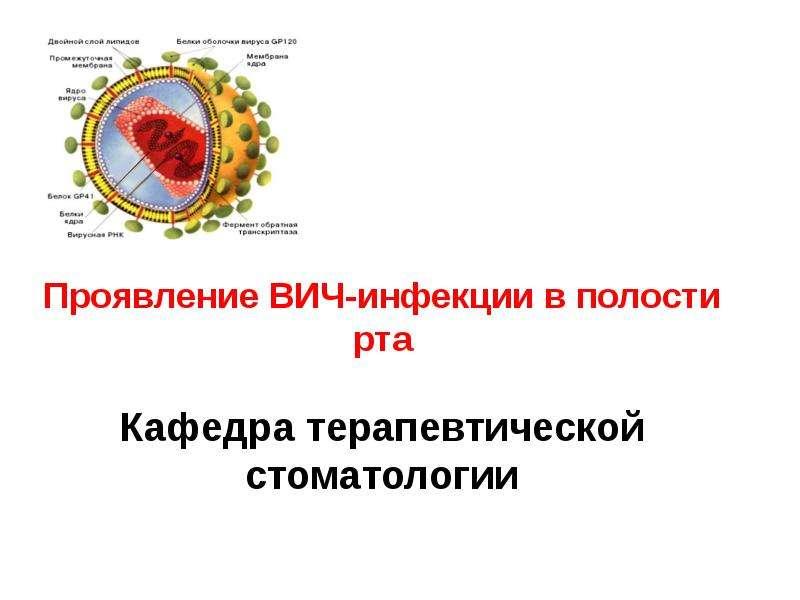 Проявление ВИЧ-инфекции в полости рта Кафедра терапевтической стоматологии