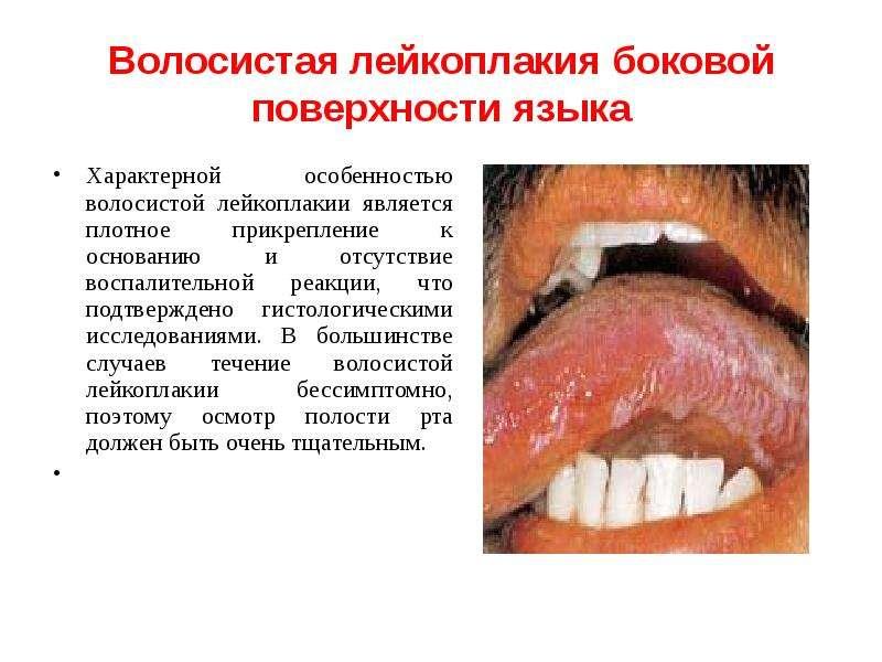 Волосистая лейкоплакия боковой поверхности языка Характерной особенностью волосистой лейкоплакии явл