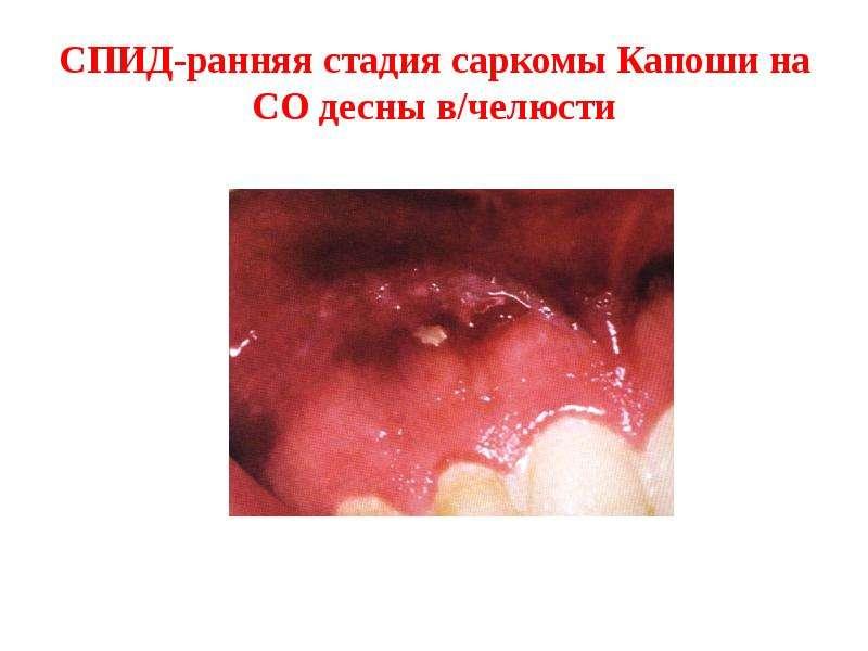 СПИД-ранняя стадия саркомы Капоши на СО десны в/челюсти
