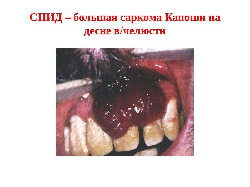СПИД – большая саркома Капоши на десне в/челюсти