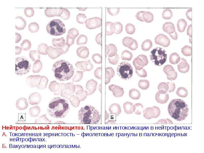 Лейкоцитоз при простатите снять боль от простатита