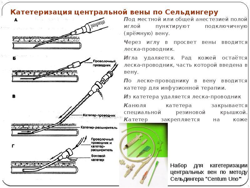 Катетеризация центральной вены по Сельдингеру Под местной или общей анестезией полой иглой пунктирую