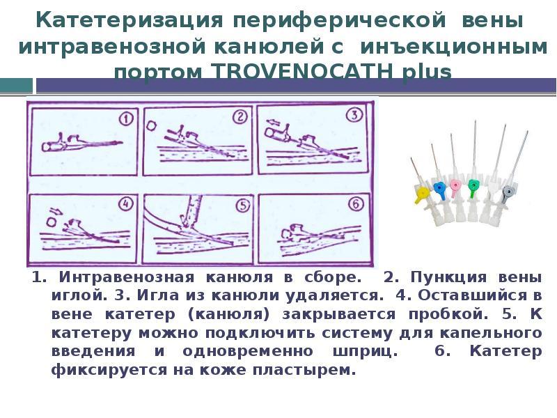 Катетеризация периферической вены интравенозной канюлей с инъекционным портом TROVENOCATH plus 1. Ин