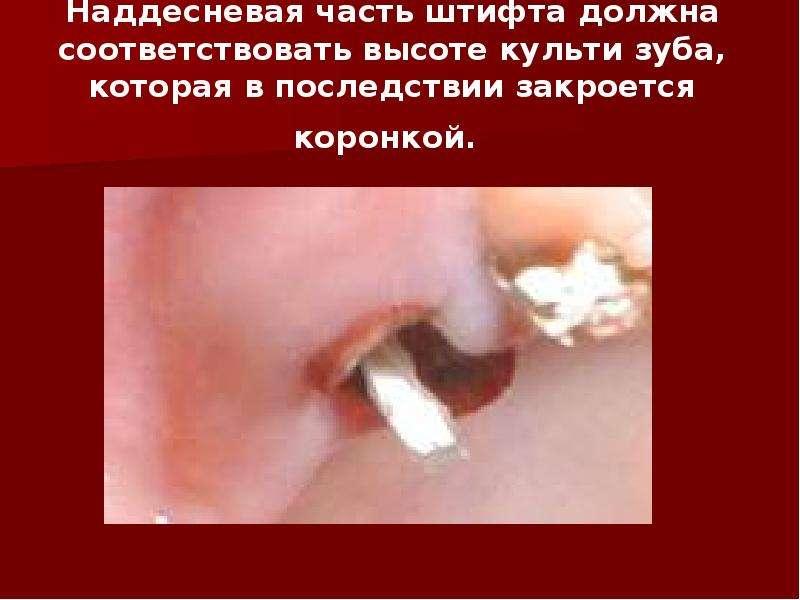 Наддесневая часть штифта должна соответствовать высоте культи зуба, которая в последствии закроется