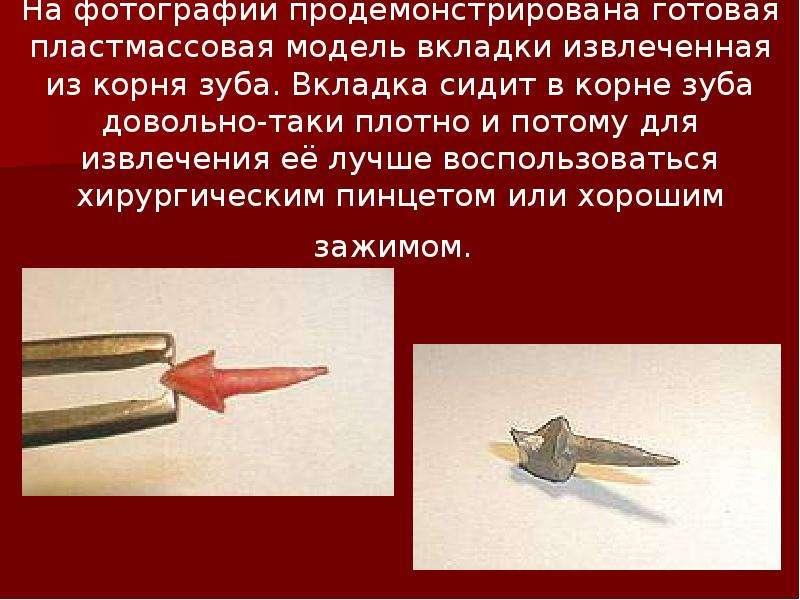 На фотографии продемонстрирована готовая пластмассовая модель вкладки извлеченная из корня зуба. Вкл