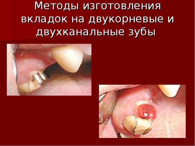 Методы изготовления вкладок на двукорневые и двухканальные зубы