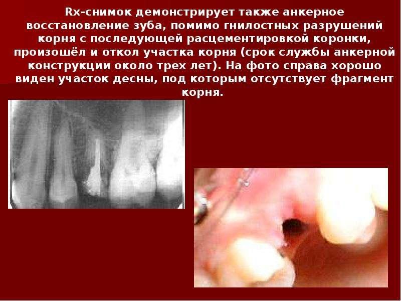 Rx-снимок демонстрирует также анкерное восстановление зуба, помимо гнилостных разрушений корня с пос