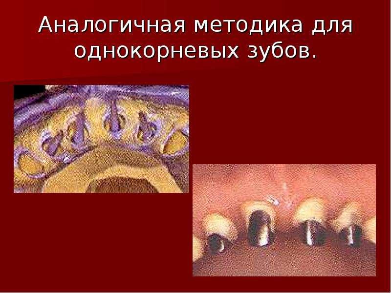 Аналогичная методика для однокорневых зубов.