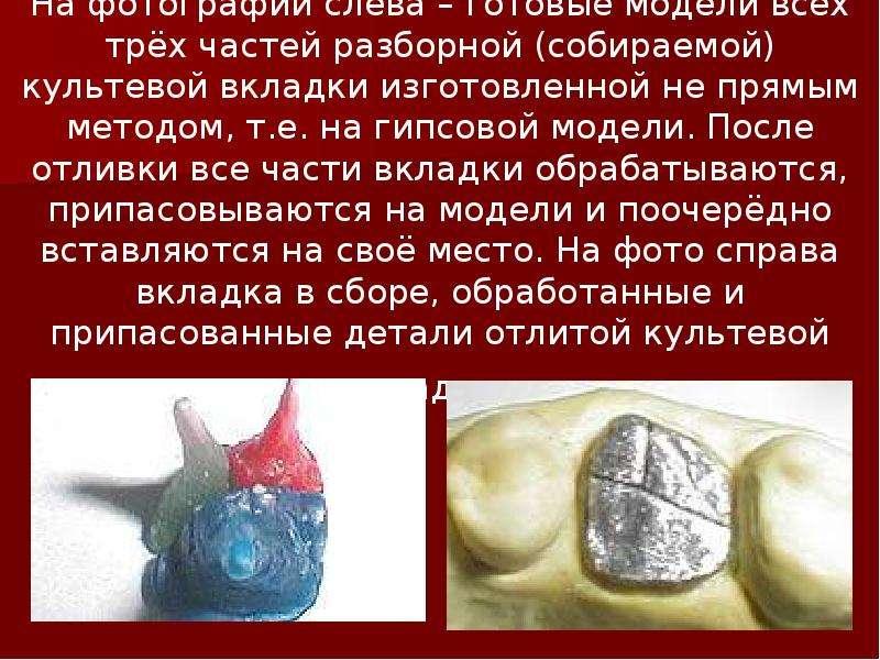 На фотографии слева – готовые модели всех трёх частей разборной (собираемой) культевой вкладки изгот