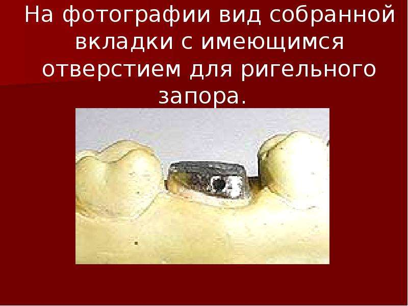 На фотографии вид собранной вкладки с имеющимся отверстием для ригельного запора.