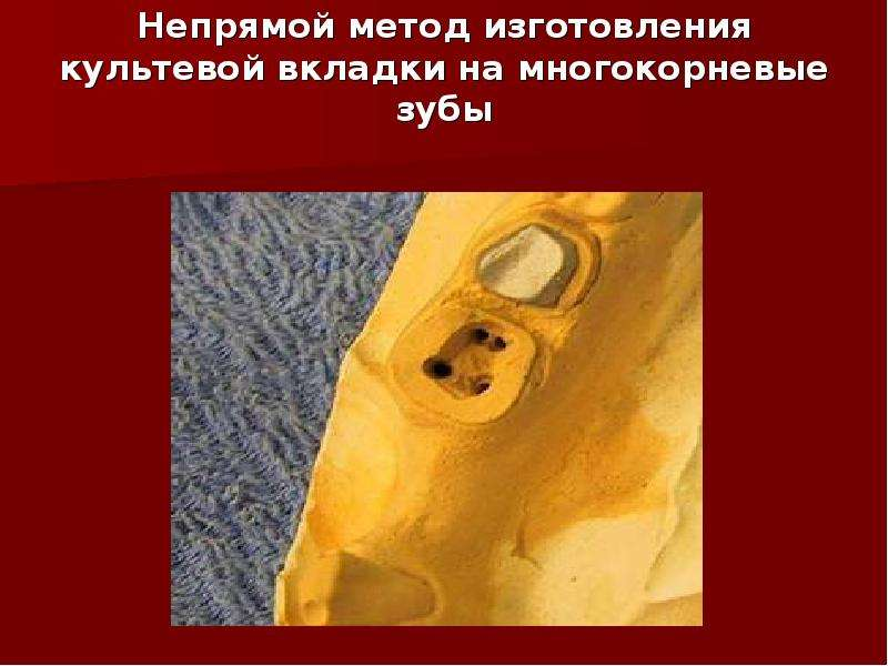Непрямой метод изготовления культевой вкладки на многокорневые зубы