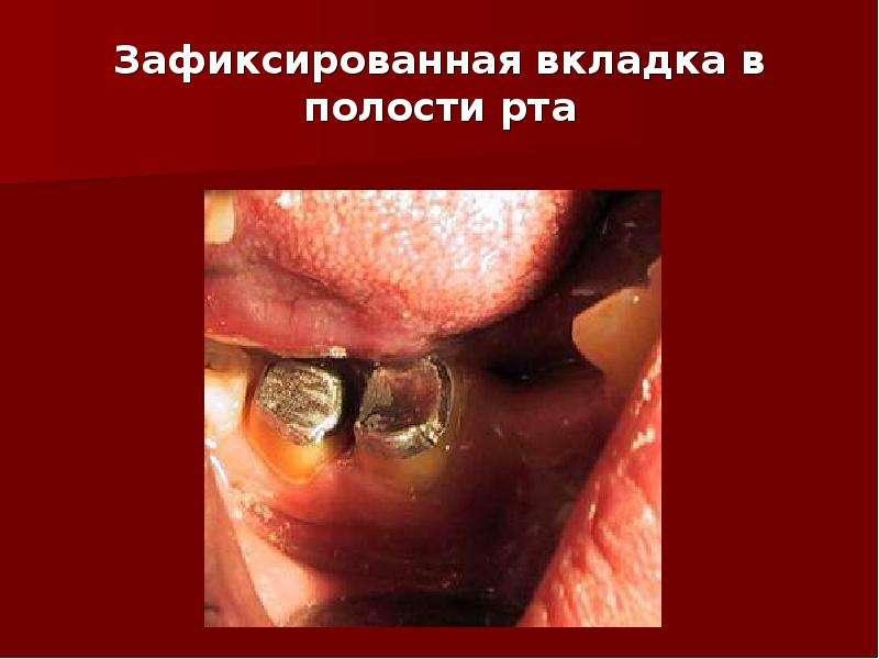 Зафиксированная вкладка в полости рта