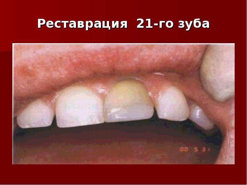 Реставрация 21-го зуба