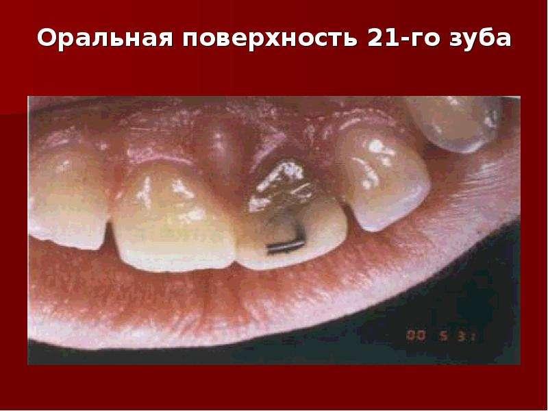 Оральная поверхность 21-го зуба