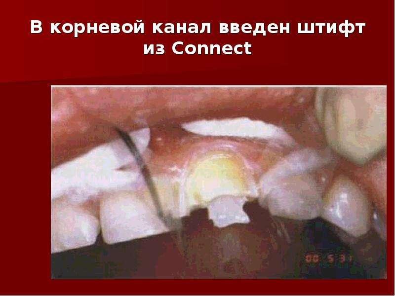 В корневой канал введен штифт из Connect