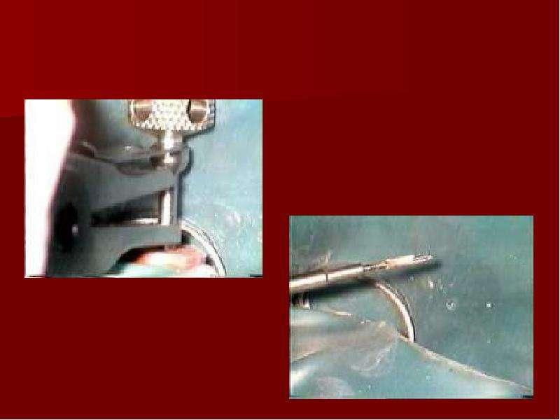 Восстановление зубов литыми вкладками, слайд 10