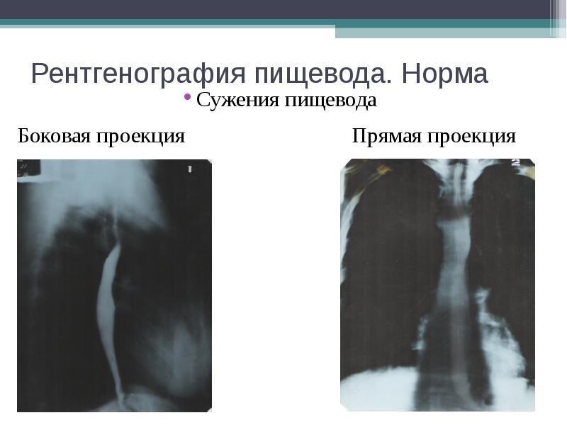 Рентгенография пищевода. Норма Сужения пищевода