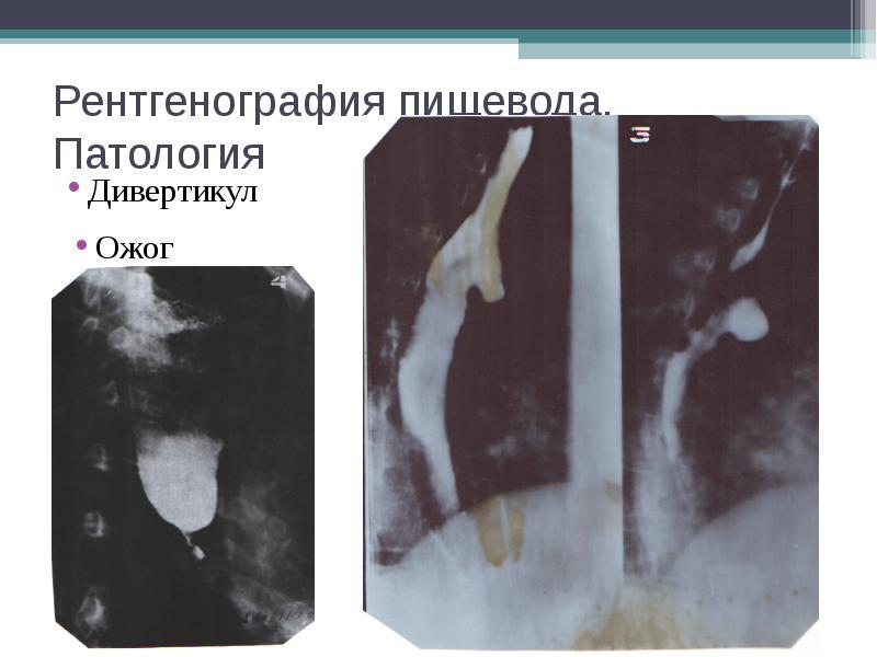 Рентгенография пищевода. Патология Дивертикул