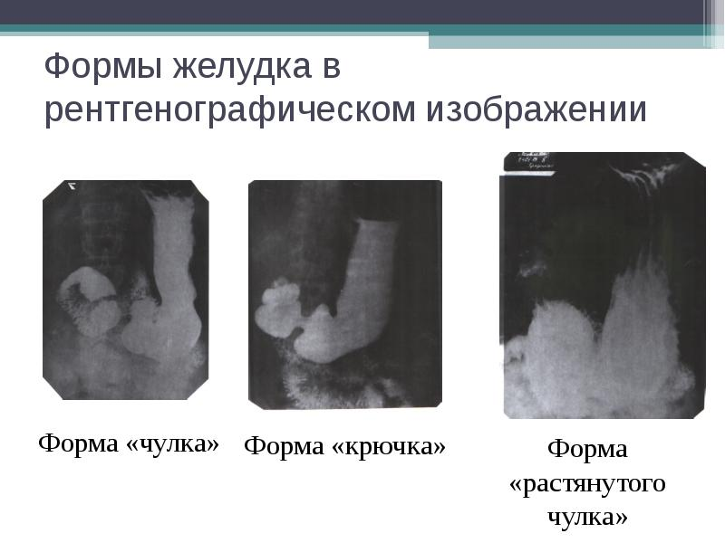 Формы желудка в рентгенографическом изображении