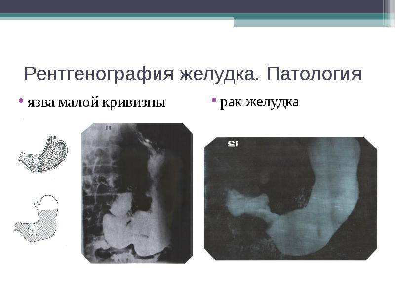 Рентгенография желудка. Патология язва малой кривизны