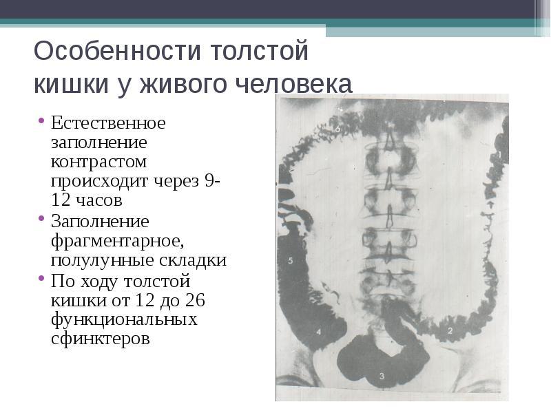 Особенности толстой кишки у живого человека Естественное заполнение контрастом происходит через 9-12