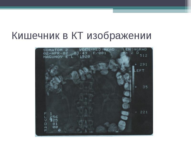 Кишечник в КТ изображении