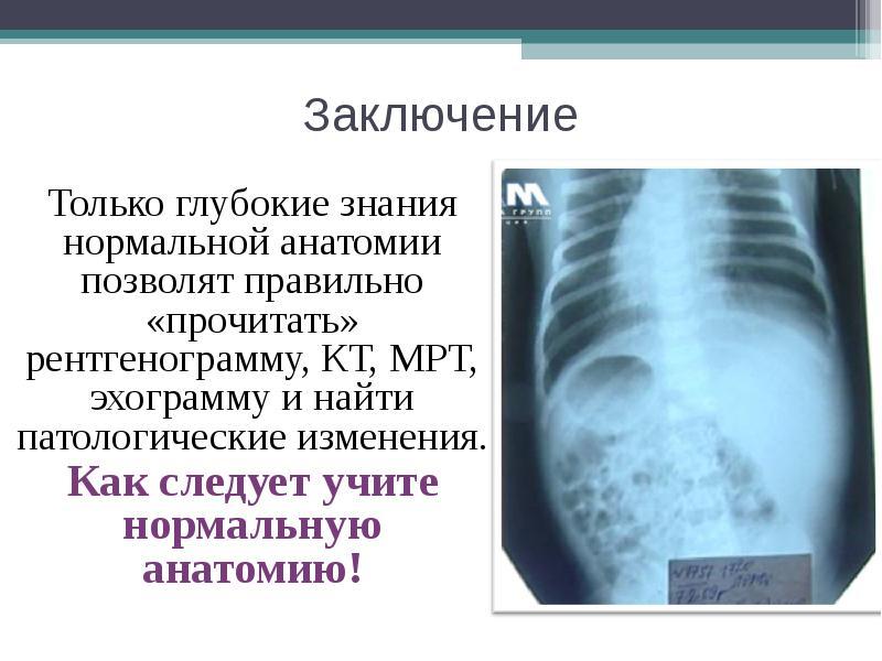 Заключение Только глубокие знания нормальной анатомии позволят правильно «прочитать» рентгенограмму,