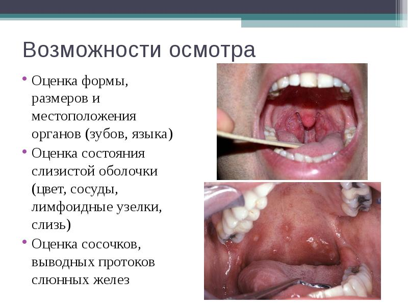 Возможности осмотра Оценка формы, размеров и местоположения органов (зубов, языка) Оценка состояния