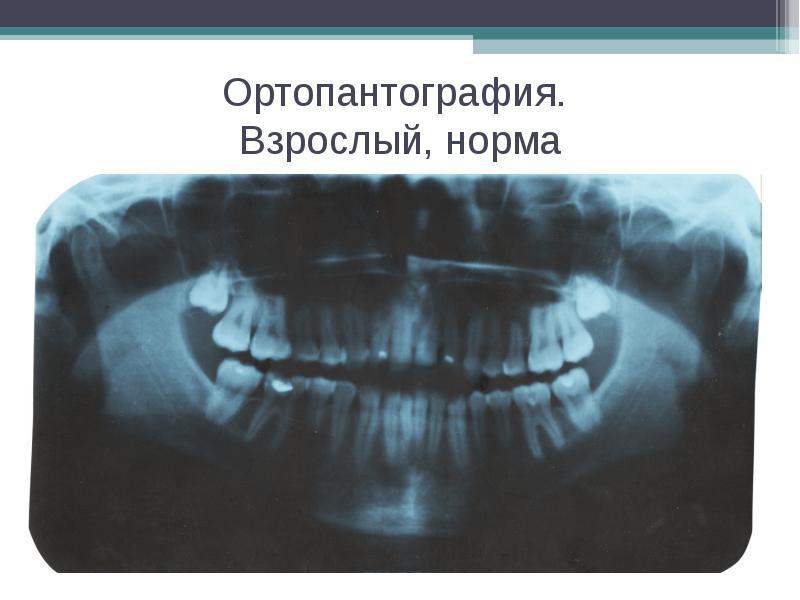 Ортопантография. Взрослый, норма