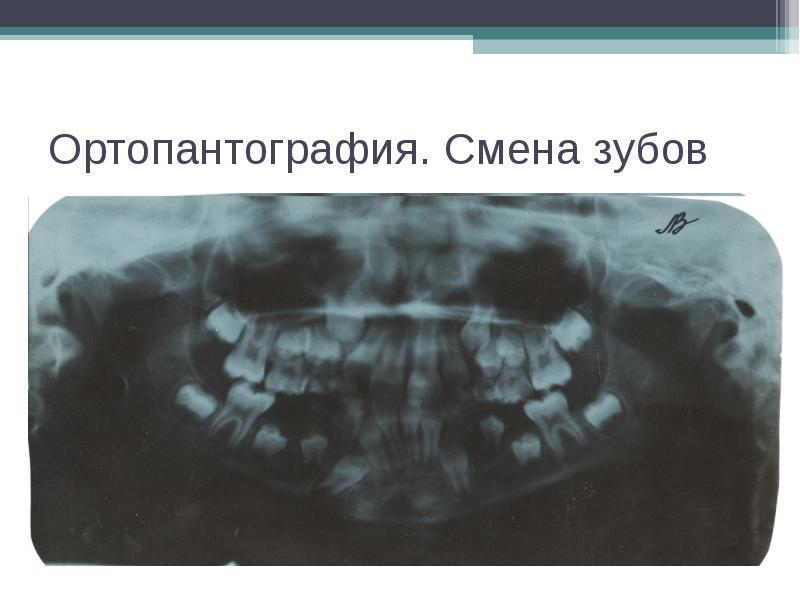 Ортопантография. Смена зубов