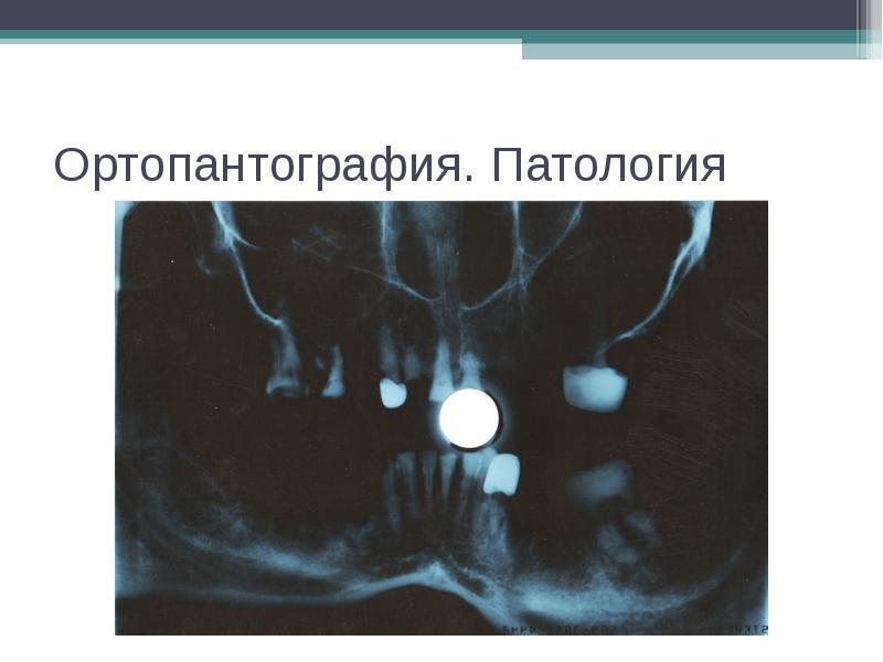 Ортопантография. Патология