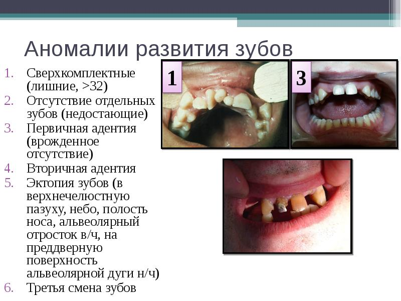 Аномалии развития зубов Сверхкомплектные (лишние, >32) Отсутствие отдельных зубов (недостающие) П
