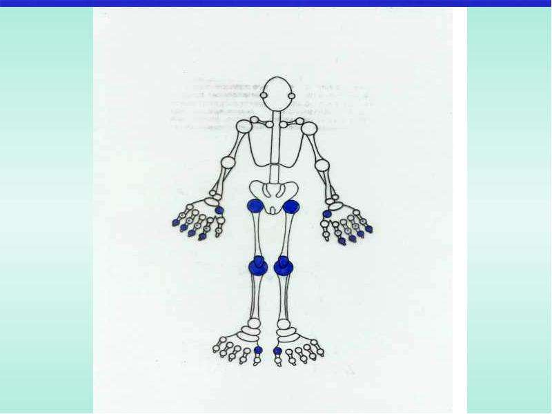 Медицинские и социальные аспекты остеоартроза, слайд 11