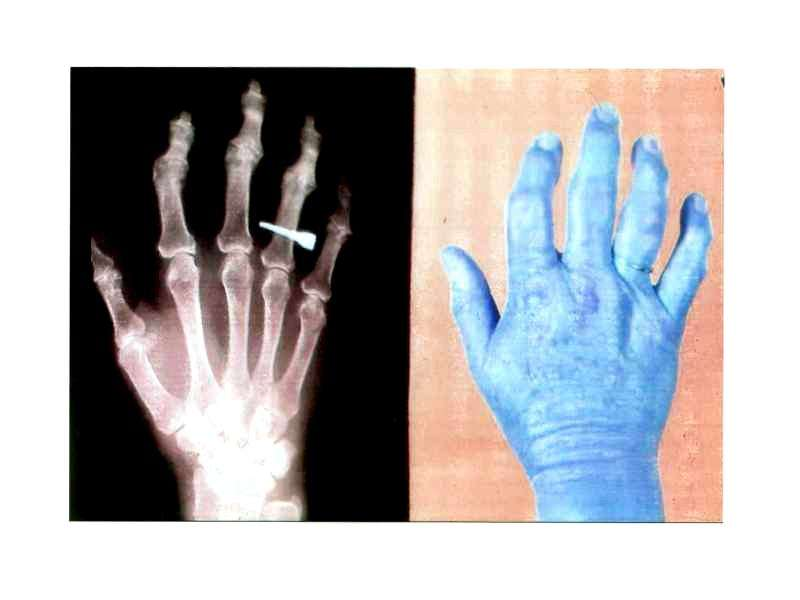 Медицинские и социальные аспекты остеоартроза, слайд 14