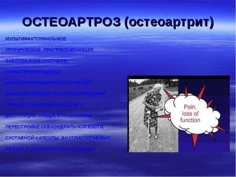 ОСТЕОАРТРОЗ (остеоартрит)