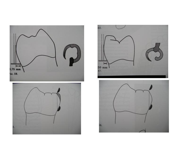 Ошибки при протезировании съемными протезами, слайд 11