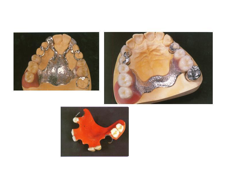Ошибки при протезировании съемными протезами, слайд 5