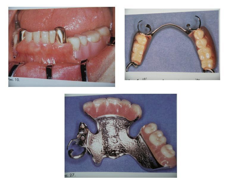 Ошибки при протезировании съемными протезами, слайд 9