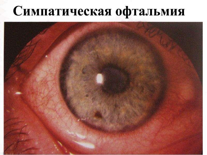 симпатическая офтальмия фото вкусно подавать шоколадной
