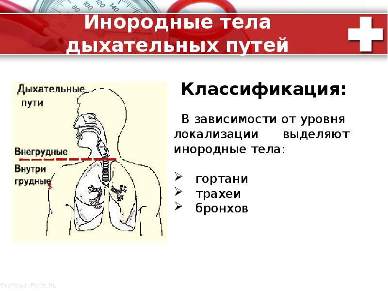 Инородные тела дыхательных путей