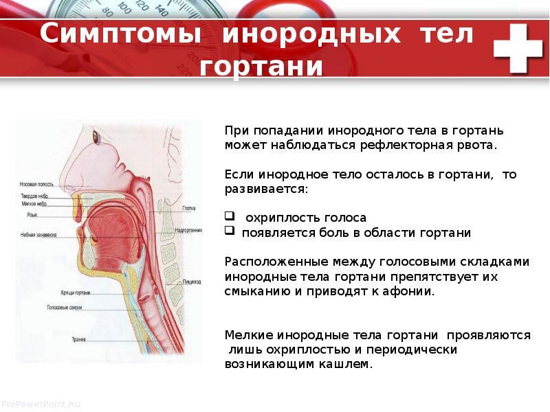 Симптомы инородных тел гортани