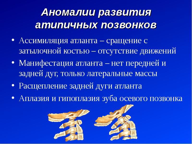 Аномалии развития атипичных позвонков Ассимиляция атланта – сращение с затылочной костью – отсутстви