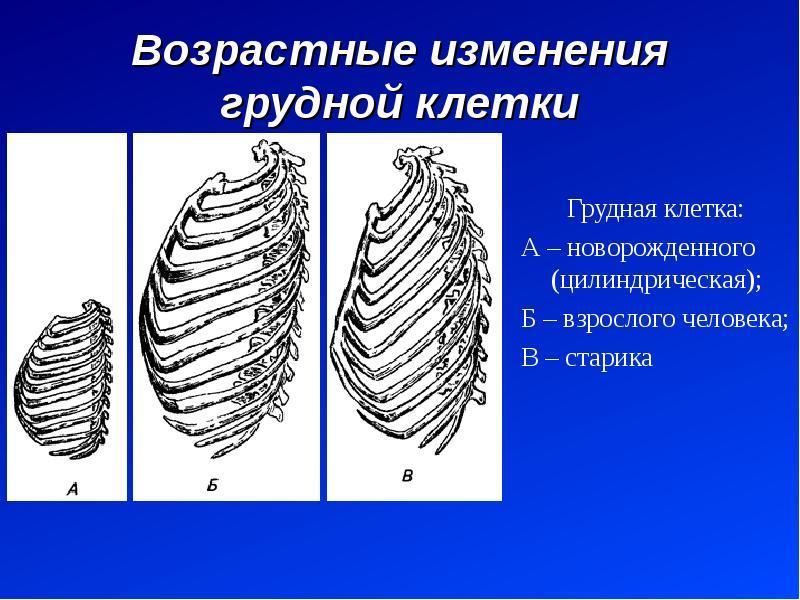 Возрастные изменения грудной клетки Грудная клетка: А – новорожденного (цилиндрическая); Б – взросло