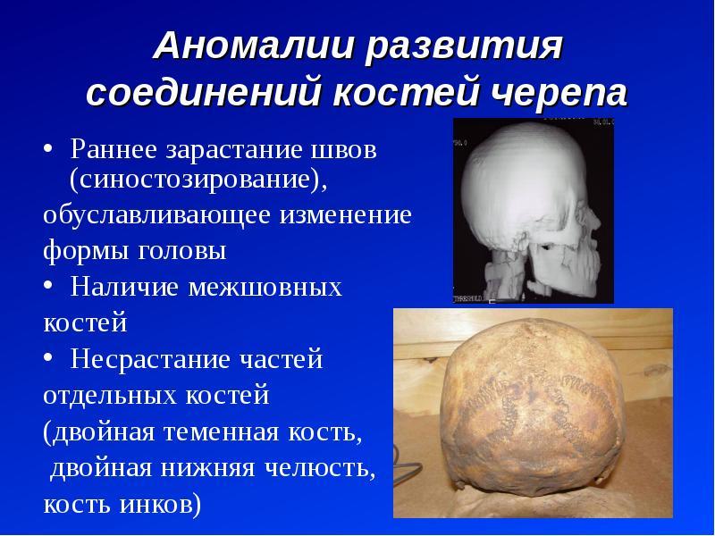 Аномалии развития соединений костей черепа Раннее зарастание швов (синостозирование), обуславливающе
