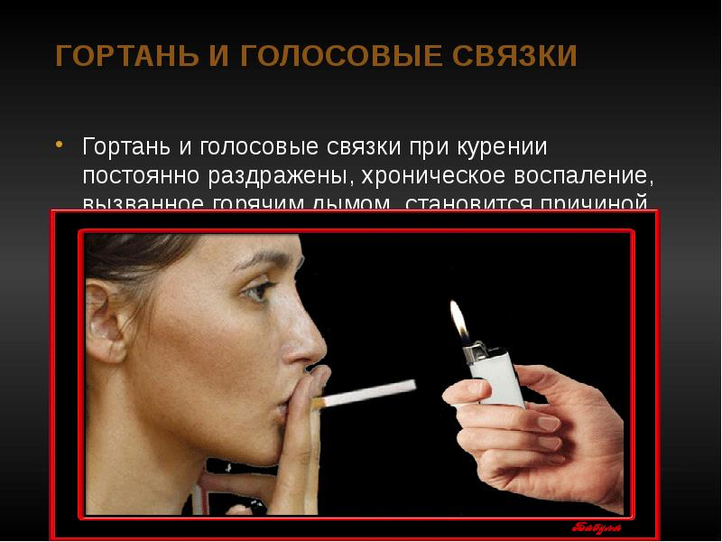 Гортань и голосовые связки Гортань и голосовые связки при курении постоянно раздражены, хроническое