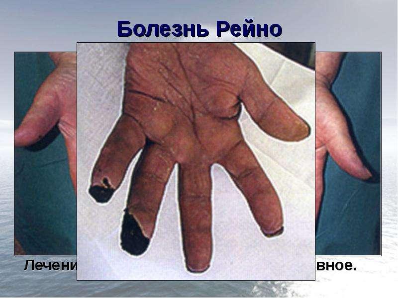 Болезнь Рейно Поражение артерий конечностей (чаще верхних) мелкого калибра; Болеют чаще женщины; В о